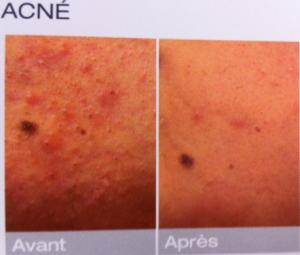 traitement_acné_laser dermatologie_dr cognard venelles