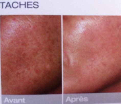traitement laser dermatologique